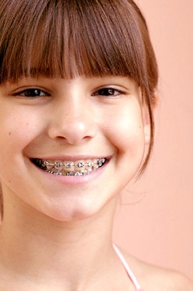 ortodontia-crianca-aparelho